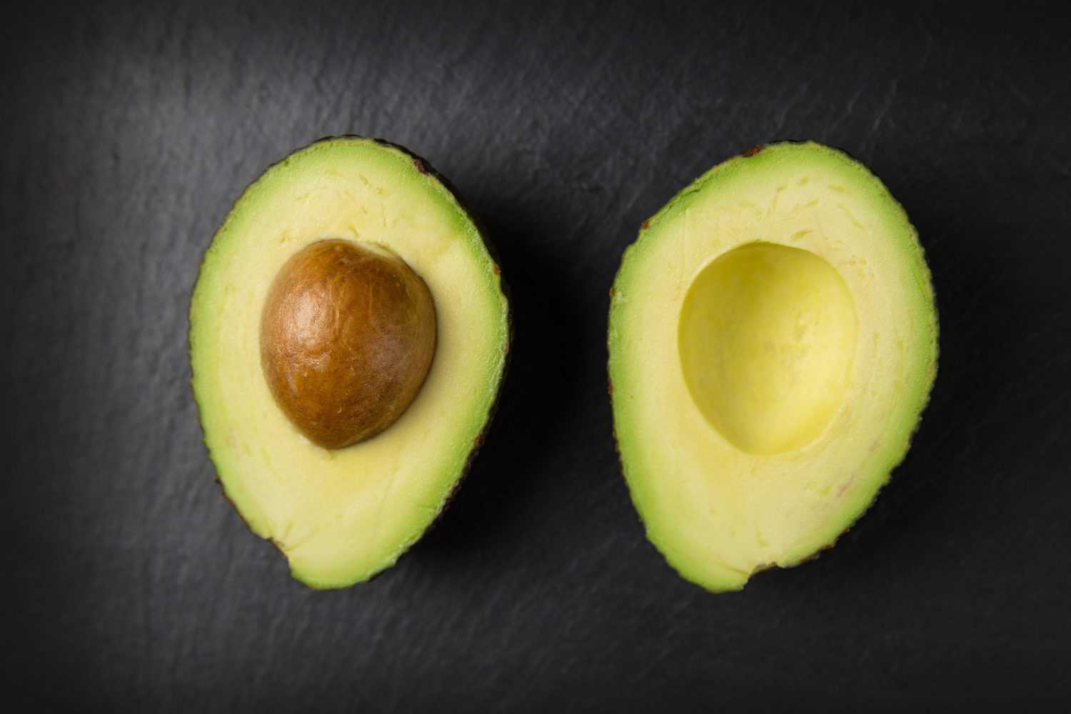 Avocados are believed to benefit brain health.